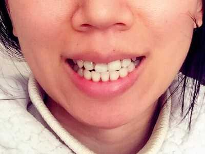 隱形牙套分類 戴隱形牙套的日子里自己總結經驗教訓